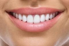 smile-anatomy-min-925x425